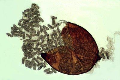Opengemaakte cyste van Globodera rostochiensis met eitjes. Foto copyright Ulrich Zunke, University of Hamburg; bron: www.forestryimages.org.